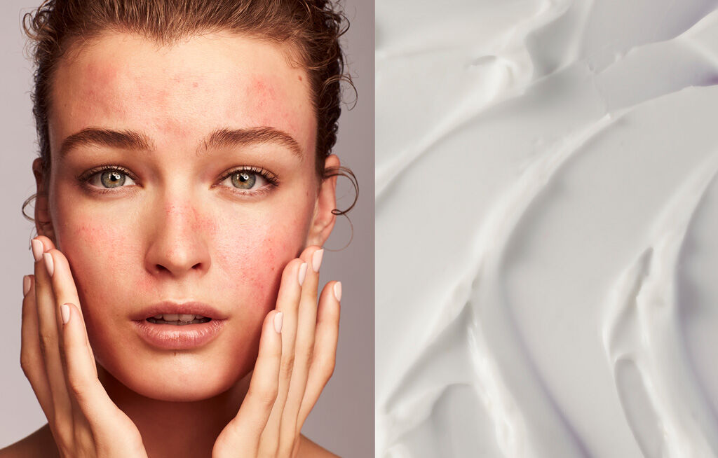 Causes of Irritated Skin on the Face