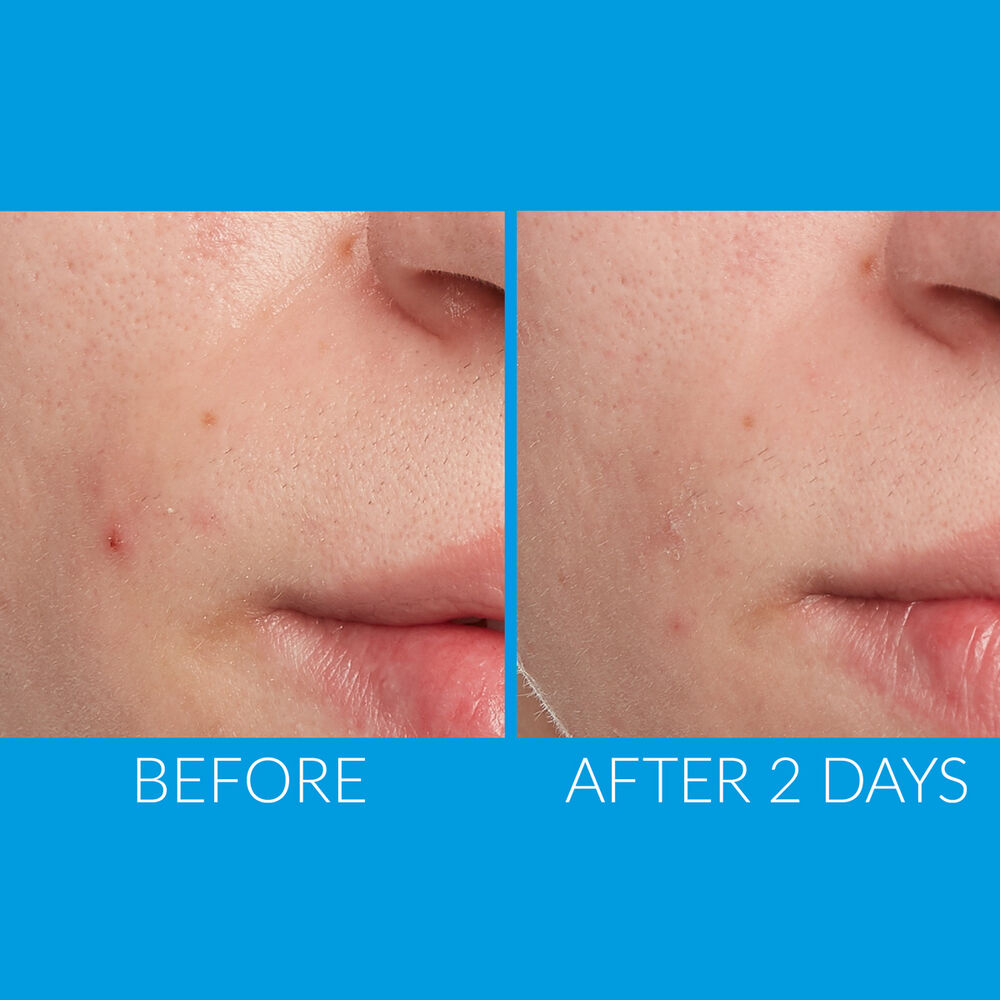 Kate S Best Selling Acne Spot Treatment