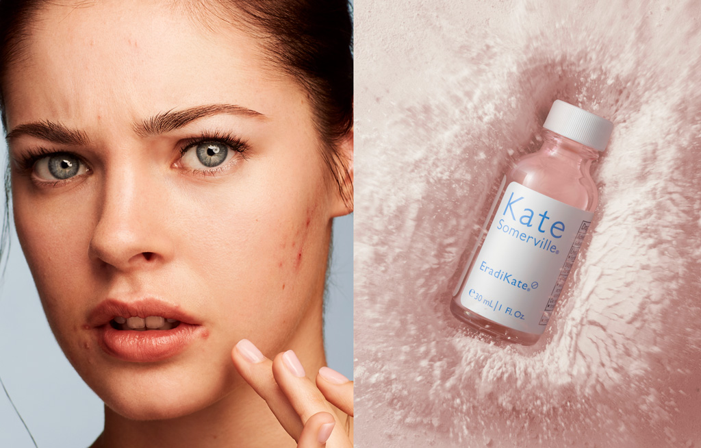 Diet Do's & Don'ts for Hormonal Acne